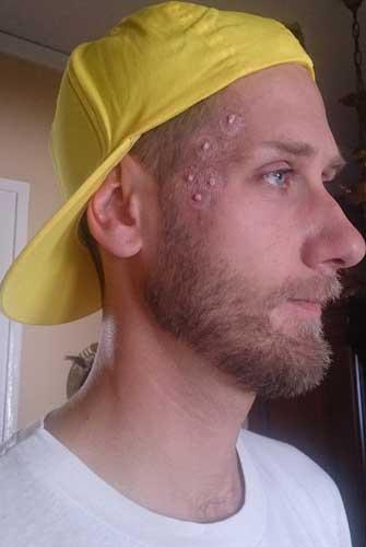 tournage clip cotorep rap français maquillage photo bouton nunsu coto